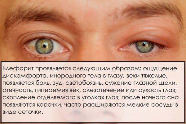 Все мази глазные список