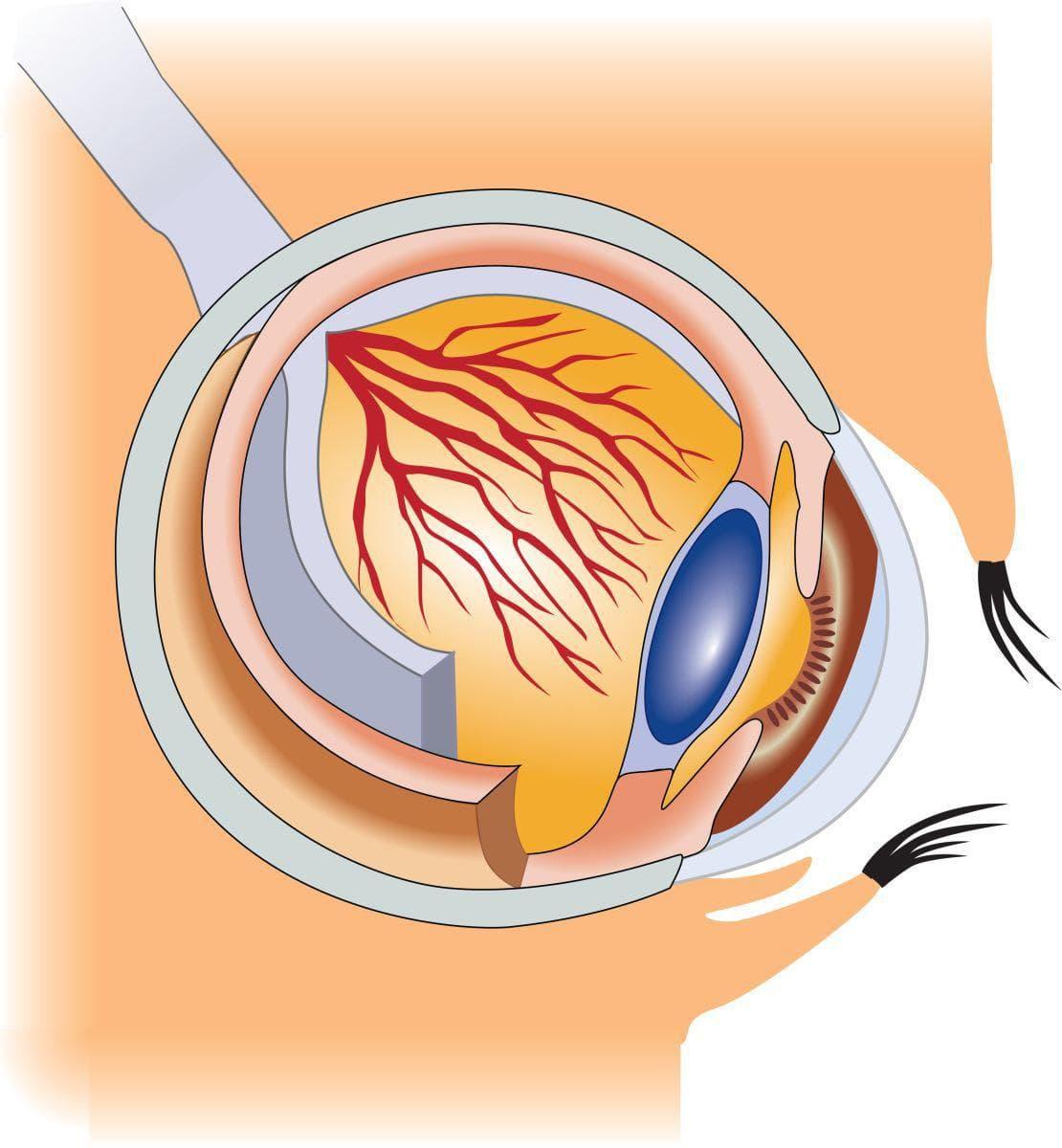 Глаукома – признаки и симптомы: лечение, как выглядит заболевание