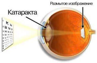 катаракта причины симптомы лечение