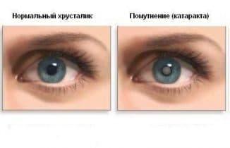 катаракта причины симптомы лечение и профилактика, операция катаракта операция катаракты, симптомы катаракты, катаракта симптомы, катаракта операция после операции катаракты, катаракта операция цены, операция катаракты цены, катаракта лечение народными средствами без операции отзывы,