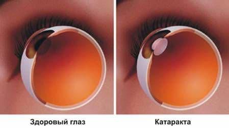 операция катаракта