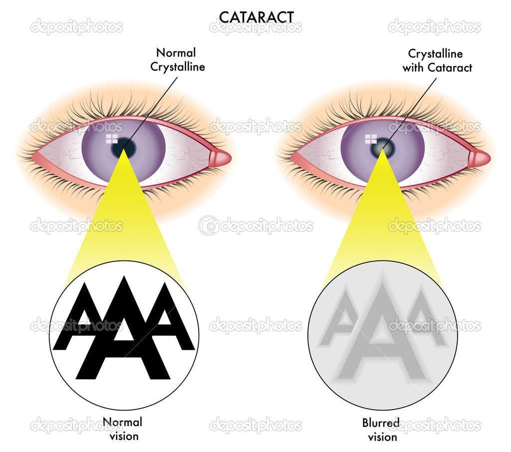 Катаракта глаза у пожилых - что будет если не лечить?