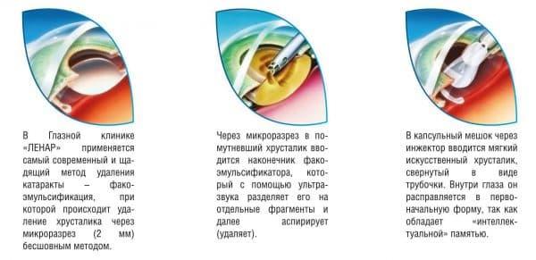 катаракта удаление, удаление катаракты, катаракта операция по удалению, операция по удалению катаракты, послеоперационная катаракта удаление катаракты послеоперационный, послеоперационный период после удаления катаракты, операция по удалению катаракты с заменой хрусталика,