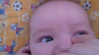 конъюнктивит у ребенка, конъюнктивит у ребенка чем лечить, конъюнктивит у детей лечение, конъюнктивит у грудничка, конъюнктивит у детей фото, вирусный конъюнктивит у детей, конъюнктивит у детей симптомы, конъюнктивит у ребенка 2 года,