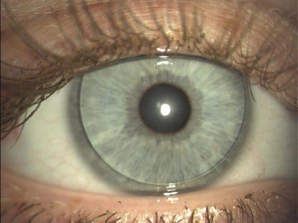 торические линзы что это такое, торические контактные линзы, торические линзы acuvue oasys, что значит торические линзы, что значит торические контактные линзы, торические линзы acuvue oasys for astigmatism, торические цветные контактные линзы, торическая интраокулярная линза, как одевать торические линзы,