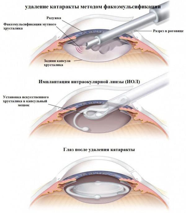 Удаление катаракты методом факоэмульсификации