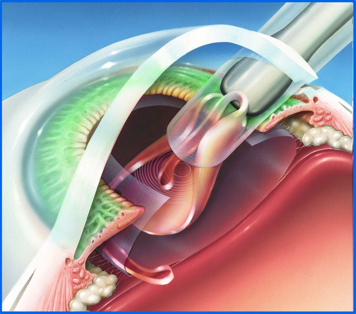 Вторичная катаракта после замены хрусталика лечение Своевременное лечение