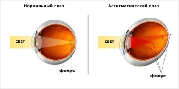 торические линзы что это такое, торические контактные линзы, торические линзы acuvue oasys, однодневные торические линзы, торическая интраокулярная линза, как одевать торические линзы, торические линзы acuvue oasys for astigmatism, цветные торические линзы,