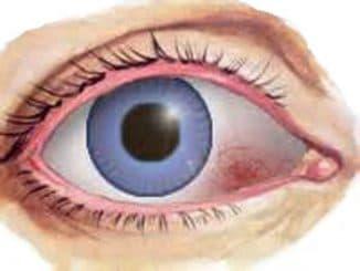 эписклерит, эписклерит симптомы и лечение, эписклерит глаза причины, эписклерит глаза фото, эписклерит лечение,