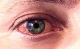 иридоциклит, иридоциклита глазное заболевание что это, иридоциклит лечение, иридоциклит фото, иридоциклит симптомы, острый иридоциклит,