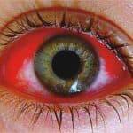 покраснение вокруг глаз причины, покраснения вокруг глаз у ребенка, покраснел белок глаза, покраснение кожи вокруг глаз причины, у ребенка красные глаза и чешутся, средство от покраснения глаз, покраснение под глазами и шелушение, сильное покраснение глаз,