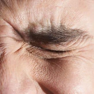 иридоциклит, иридоциклита глазное заболевание что это, иридоциклит лечение, иридоциклит фото, иридоциклит симптомы, острый иридоциклит, лечение иридоциклита,