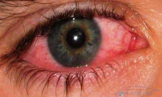 покраснение вокруг глаз причины, покраснения вокруг глаз у ребенка, покраснел белок глаза, покраснение кожи вокруг глаз причины, у ребенка красные глаза и чешутся, средство от покраснения глаз, покраснение под глазами и шелушение, сильное покраснение глаз, почему покраснел белок глаза, покраснение века глаза причины,