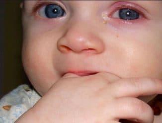 конъюнктивит у новорожденного, конъюнктивит у грудничка, конъюнктивит у новорожденного чем лечить, конъюнктивит у новорожденного лечение, конъюнктивит у младенца, конъюнктивит у грудничка чем лечить, конъюнктивит у грудничка лечение,