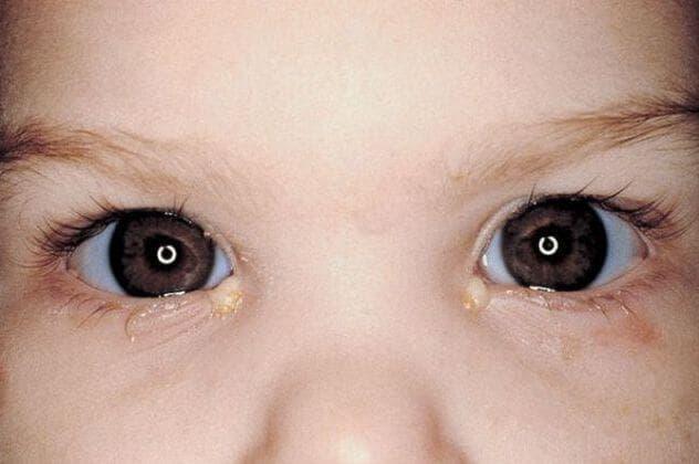 детский конъюнктивит фото, как долго лечить конъюнктивит у ребенка, как проявляется конъюнктивит у детей, хронический конъюнктивит у ребенка, конъюнктивит у двухмесячного ребенка, чем лечить конъюнктивит у детей 4 года, конъюнктивит у маленьких детей,
