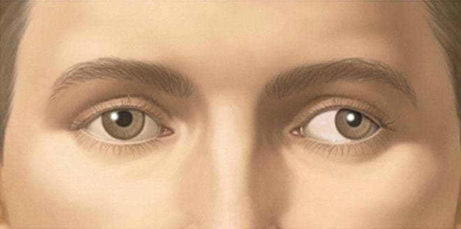 Косоглазие одного глаза у взрослого
