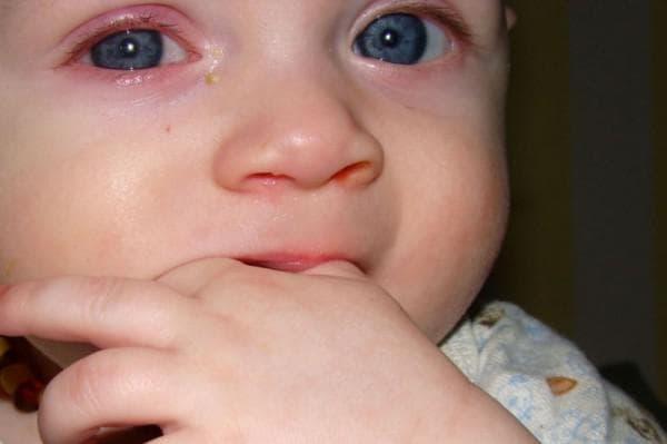у ребенка красные глаза, красные глаза у ребенка причины, красные круги под глазами у ребенка, у ребенка красные глаза что делать, у ребенка глаза красные и гноятся, покраснение вокруг глаз, красные круги под глазами у ребенка причины, красные пятна под глазами у ребенка,