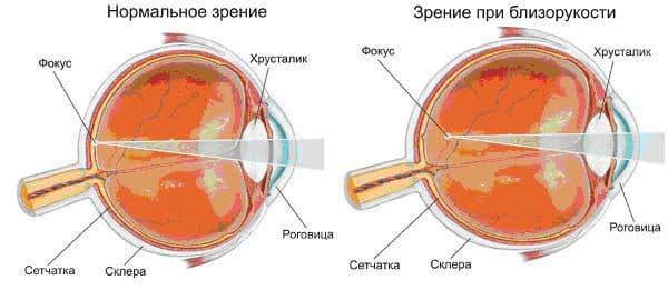 мультифокальные линзы что это такое, мультифокальные контактные линзы, торическая интраокулярная линза, мультифокальные однодневные контактные линзы, мультифокальные контактные линзы clariti multifocal, мультифокальные линзы ежедневной замены,