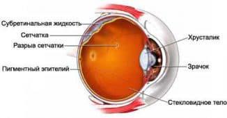 отслойка сетчатки глаза, изображение на сетчатке глаза, заболевания сетчатки глаза, как лечить глаза, болезни сетчатки глаза, лечение сетчатки глаза, макулодистрофия сетчатки глаза,