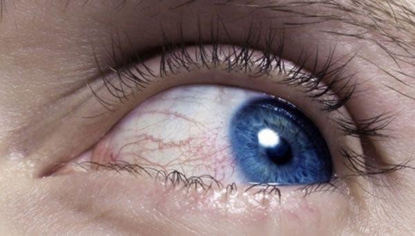 увеит, увеит глаза, увеит фото, увеиты симптомы лечение, увеит лечение, увеит симптомы, увеит причины возникновения, увеит причины, передний увеит,