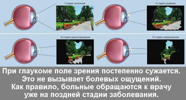 Глаукома и катаракта что это такое, симптомы, глазные капли, одновременно, народные средства, лечение, операция