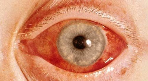 Покраснение во время закрытоугольной глаукомы
