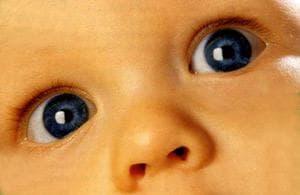 Косоглазие у новорожденных детей: когда оно проходит