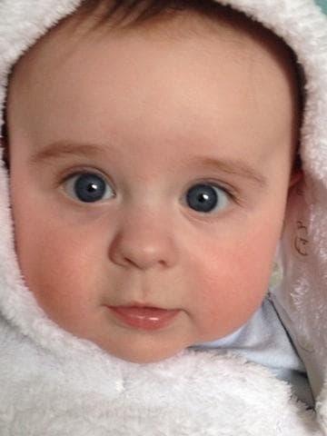 Косоглазие у новорожденных: причины возникновения, методы лечения и профилактика