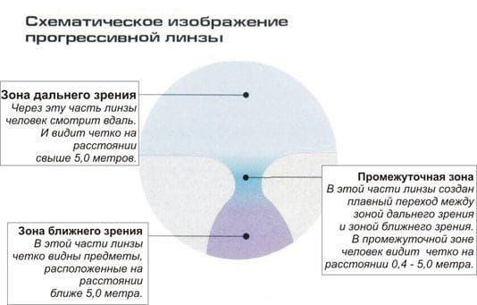 Перифокальные линзы: бифокальные, мультифокальные, для очков, разметка