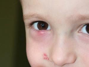 Почему у ребенка красные глаза: причины, сосуды на белках, прожилки, и желтизна