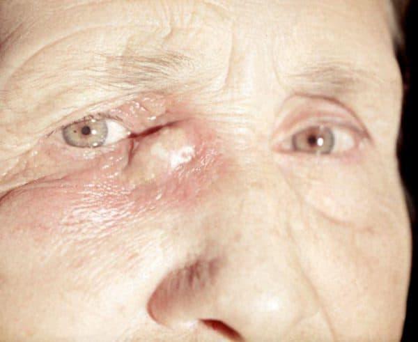 Дакриоцистит у взрослых лечение, причины