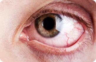 Бактериальный конъюнктивит: симптомы и лечение, чем отличается вирусный, гнойный, чем лечить, слизисто, острый, заразен, у детей, у взрослых
