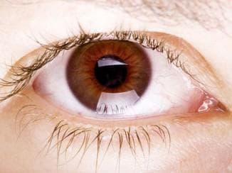 Признаки катаракта глаза, симптомы, операция по удалению, как лечить, без, первые, народными средствами, в ранней стадии, начальной