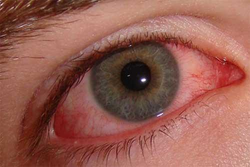 Аденовирусный конъюнктивит: лечение, симптомы у взрослых, детей, сколько длится, как лечить