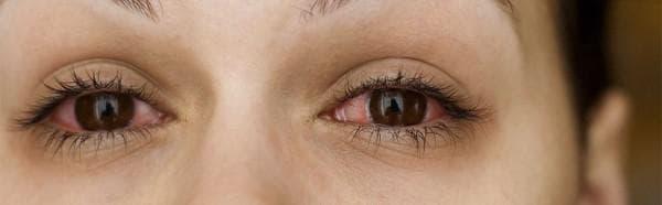 Как быстро вылечить конъюнктивит: лечение, чем у детей, симптомы, аллергический, бактериальный, при беременности, в домашних условиях