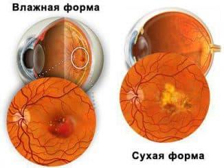Макулярная дистрофия сетчатки глаза: лечение народными средствами, форум, причины, макулодистрофия, влажная, сухая, возрастная