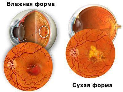 Что такое вмд глаза