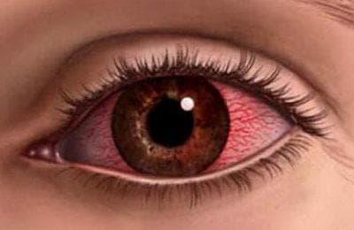 Красные белки глаз: причины у грудничка, сетка, точка у ребенка, уставшие, почему постоянно