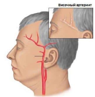 височный артериит, височный артериит симптомы, артериит, гигантоклеточный артериит, артериит такаясу, височный артериит симптомы и лечение