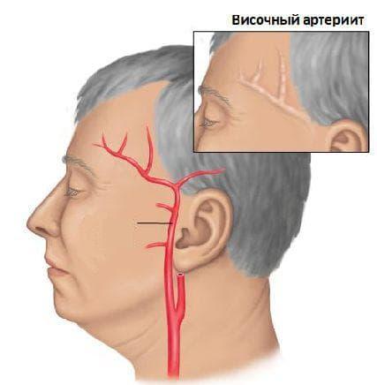 Артериит причины симптомы лечение прогноз формы