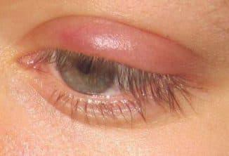 Верхнее веко: воспаление, припухлость, лечение глаза, покраснение