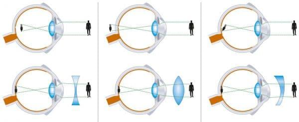 Виды искажений изображения при дальнозоркости