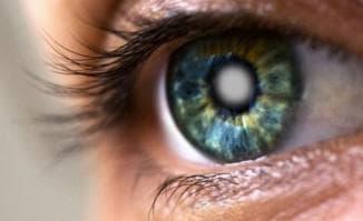 Катаракта причины возникновения симптомы и методы лечения