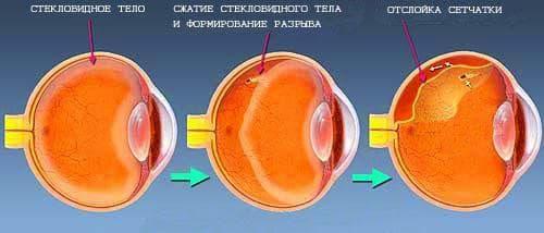 Отслойка сетчатки глаза, симптомы, причины, диагностика 5