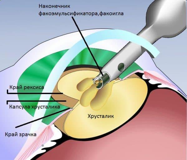 Экстракапсулярная операция