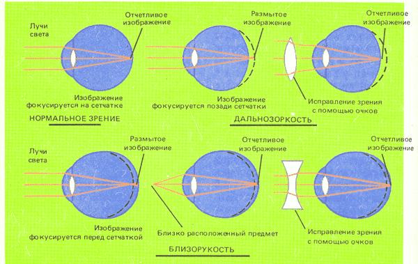близорукость и дальнозоркость графическое представление