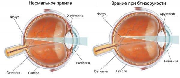 близорукость и нормальное зрение