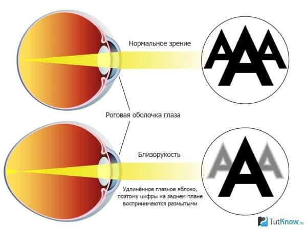 Как сохранить зрение при близорукости