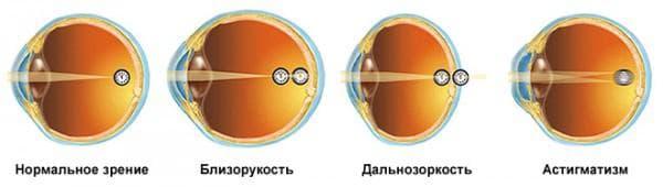 виды патологий зрения