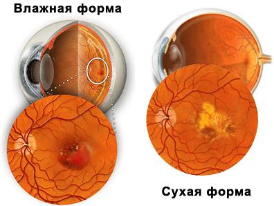 влажная и сухая формы макулодистрофии